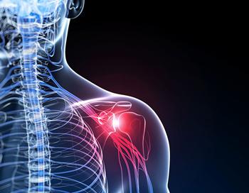 Frozen shoulder treatment in kingston